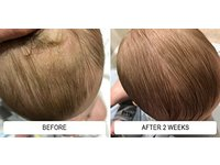 Dr. Eddie's Happy Cappy Medicated Shampoo & Body Wash, 8 fl oz - Image 10