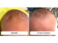 Dr. Eddie's Happy Cappy Medicated Shampoo & Body Wash, 8 fl oz - Image 7