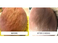 Dr. Eddie's Happy Cappy Medicated Shampoo & Body Wash, 8 fl oz - Image 9