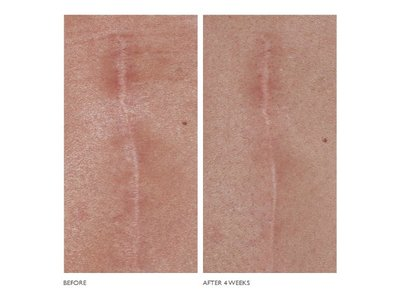 Kate Somerville D-Scar Scar Diminishing Serum, .66 fl oz - Image 8